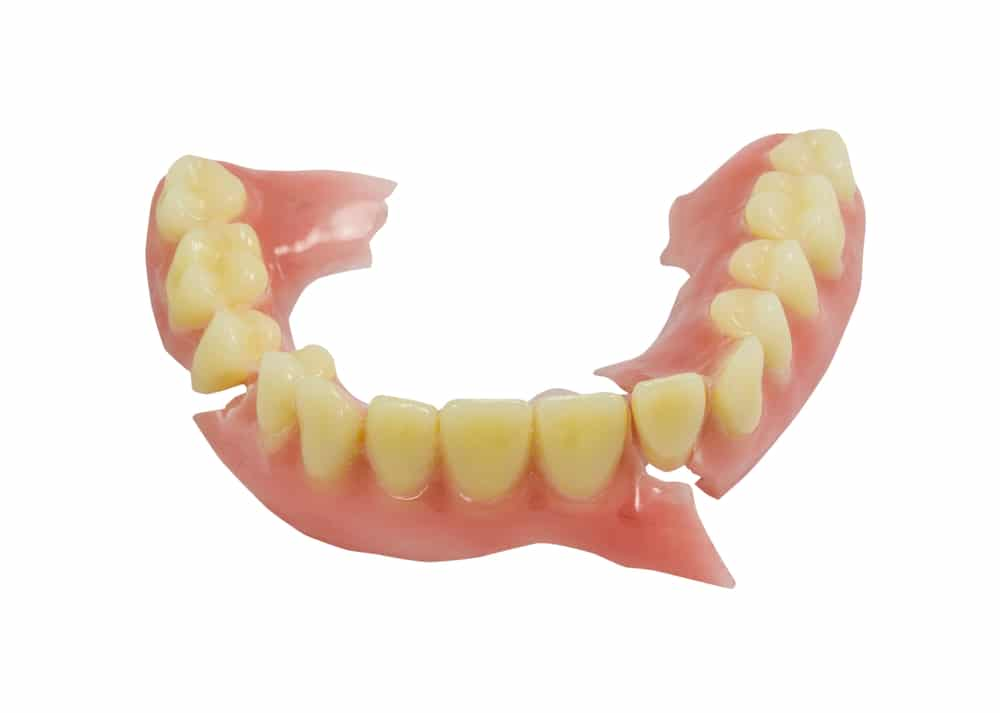 broken dentures need repair