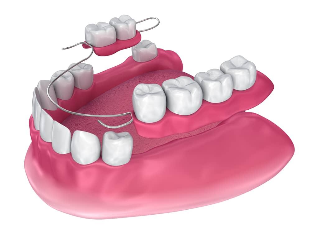 3D diagram of partial lower mouth dentures.