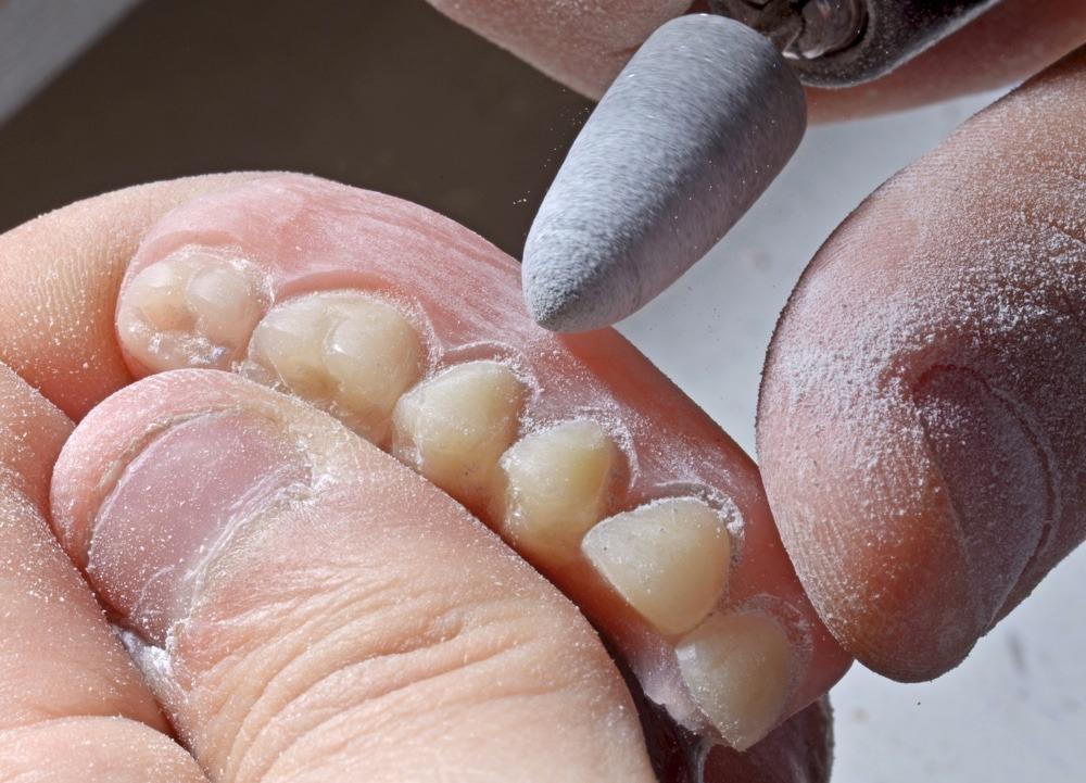 denturist repairing dentures