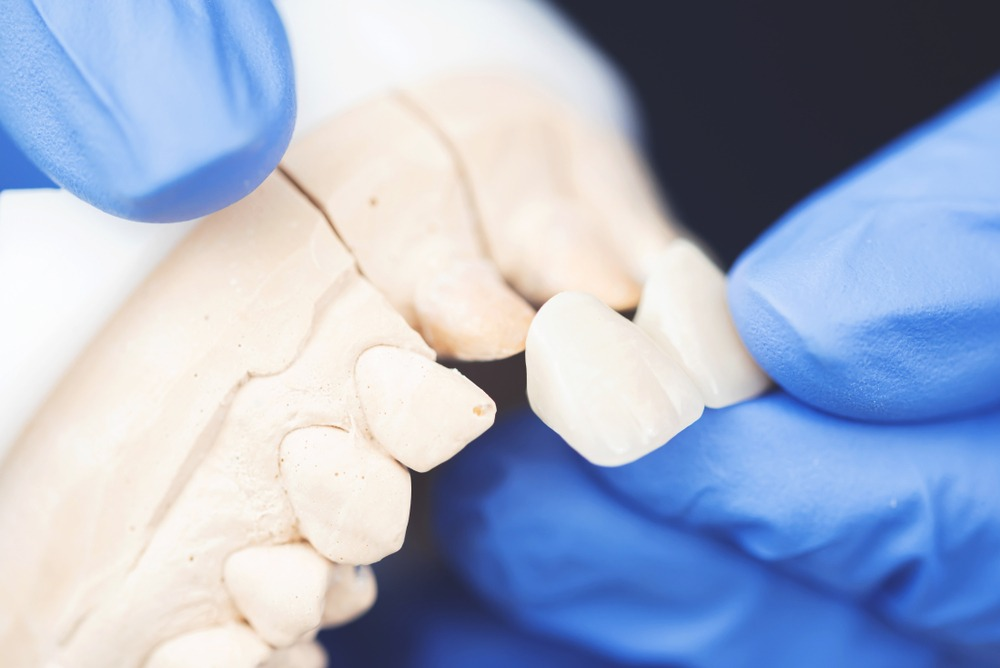 Denturist wearing gloves installing new caps of a set of dentures