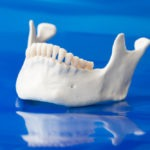 What is Bone Resorption and Why does it Happen?