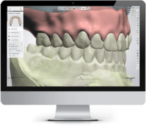 3D x-ray image of a patients teeth
